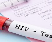 Patients' HIV status should not impact their cancer care
