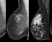 Breast density, microcalcifications, and masses may be heritable traits