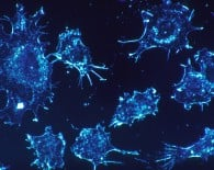 Cancer_cells_oncology news australia