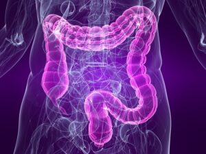 Colon cancer_oncologynews_800x600