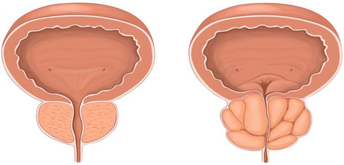 Enlarged prostate could actually be stopping tumour growth, simulations show