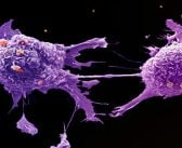 Study of mutation order may change understanding of how tumours develop