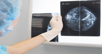 Biologists discover super-enhancers that switch on breast cancer genes
