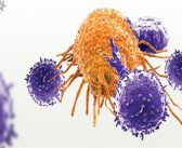 AACR 2018: Prior chemotherapies may impair ability to develop effective CAR T cells