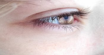 Eye and the scalpel: Ocular tumours easier to diagnose noninvasively