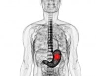 Stomach cancer_oncologynews_800x500