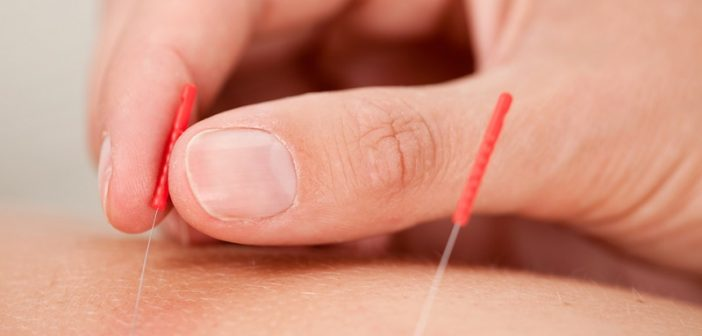 Acupressure relieves long-term symptoms of breast cancer treatment, study finds