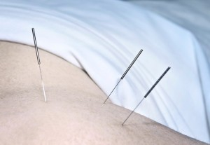 acupuncture_oncology news australia_800x500
