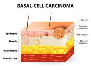 basal-cell-carcinoma_explainer_oncology news australia