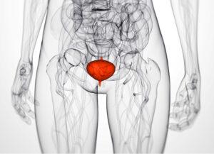 bladder female oncology news australia_800x579