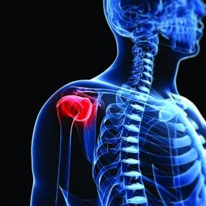 bone cancer_oncology news australia