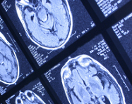 brain scans_oncology news australia