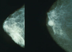 breast cancer imaging oncology new australia