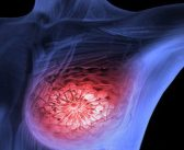 New vaccine technique effectively fights breast cancer in mice