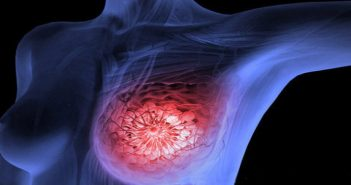 Use genetic data to predict the best time of day to give radiotherapy to breast cancer patients, say researchers