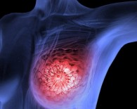 breast cancer tumour_oncology news australia