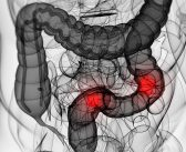 New study reveals the factors that influence bowel cancer screening participation