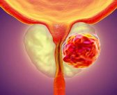 ASCO 2020: Blood test predicts response to prostate cancer treatment