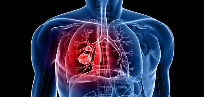 Researcher: Big data, networks identify cell signaling pathways in lung cancer