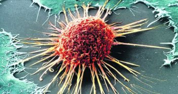 Cancer metastasis: From problem to opportunity