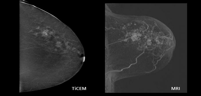 New model of the causes of breast cancer developed