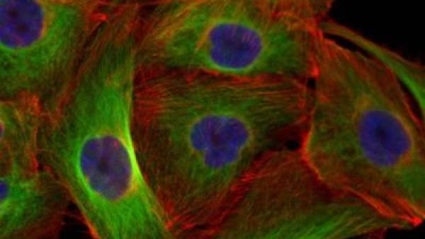 Thyroid cancer cell line FTC-133 after four hours of exposure to simulated microgravity. Nuclei are stained blue, components of the cytoskeleton stained green and red. Credit: Team Daniela Grimm