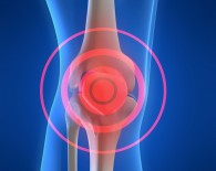 osteosarcoma_knee_oncology news australia_crpd