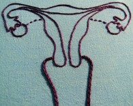 ovarian cancer cervical cancer vagina anatomy concept_oncology news australia
