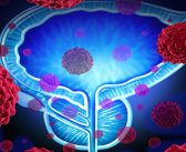 Scientists discover how cancer cells regenerate in the prostate