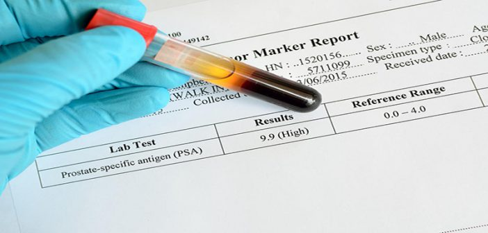 Prostate cancer screening: An expert explains why new guidelines were needed