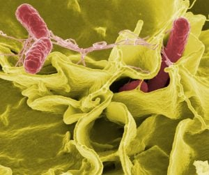 salmonella bacteria_oncology news australia