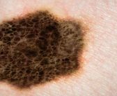 How melanoma evades targeted therapies