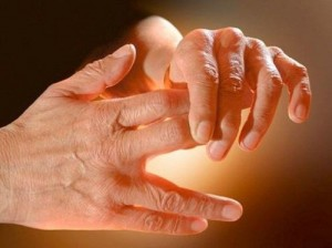 tingling hands nerve pain damage neuropathy_oncology news australia