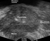 Computer-assisted ultrasound imaging could help deliver more accurate radiotherapy for prostate cancer